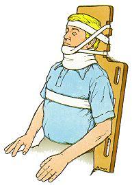 Trauma de cuello, Fractura de cuello, Manejo del trauma de cuello, politraumatismos