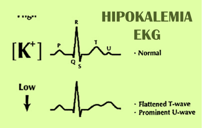 Hipokalemia y trastornos del sodio (Na)