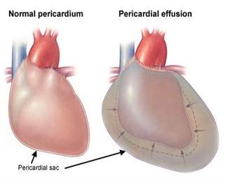 taponamiento-cardiaco.png