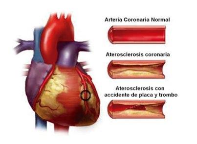 coronario-agudo