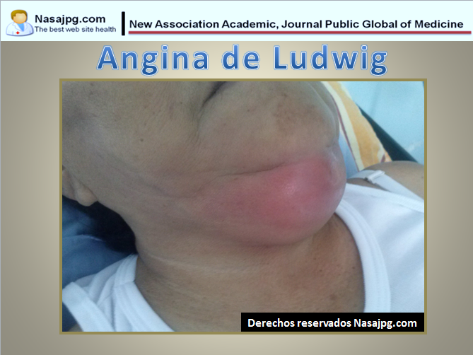 Angina de Ludwig